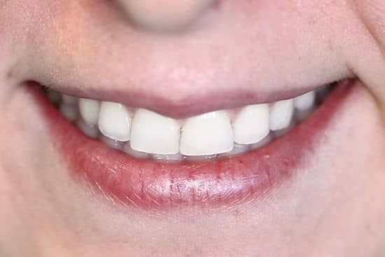 cosmetic dentistry great smile