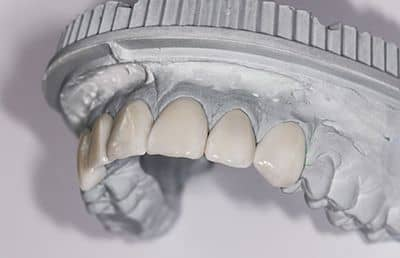 Ceramic Veneers Lumineers