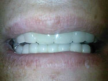 pacient dentist implant dentar