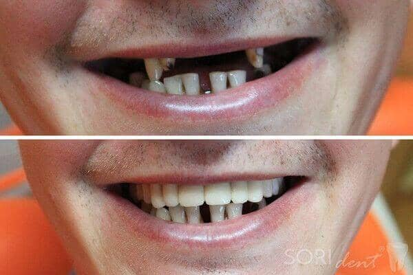 Ceramic dental bridge - Before and after dental treatment