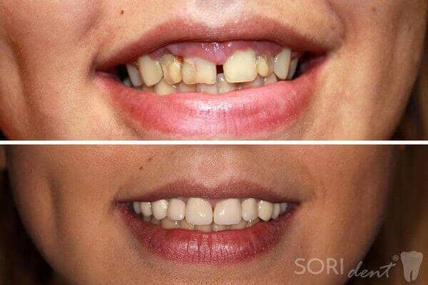 Zirconia dental crowns - Before and after dental treatment