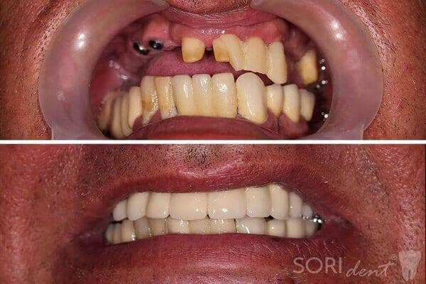 Dental implants - Before and after dental treatment