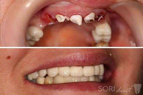 Zirconia dental crowns over implants - Before and after dental treatment