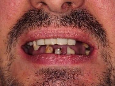 very decayed teeth