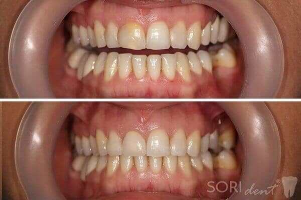 Ceramic zirconia dental crowns - Before and after dental treatment