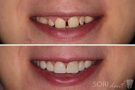 clinical case no 30 - dental veneers