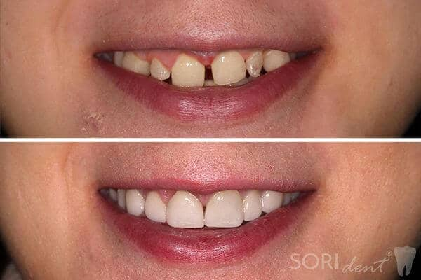 Dental veneers and e-max ceramic crowns - Before and after dental treatment