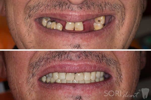 Dentures - Before and after dental treatment