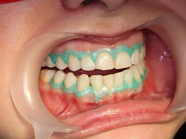 DURING TREATMENT - Applying the gingival barrier