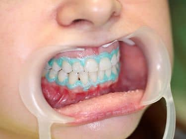DURING TREATMENT - Removing the whitening gel and the gingival barrier