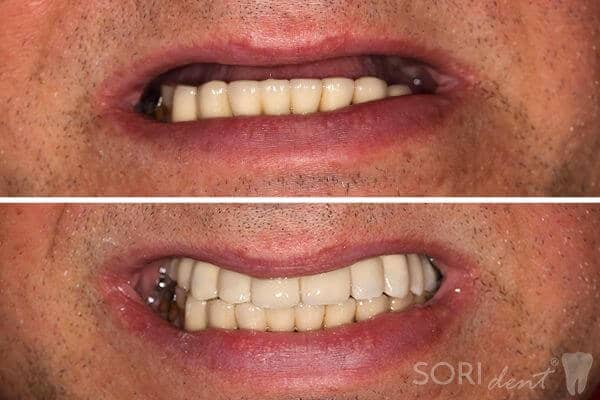 Dental Implants - All-on-six - Before and After Dental Treatment