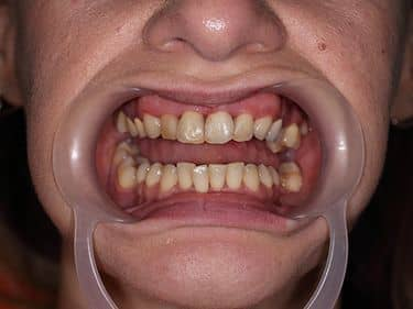 Dark and discoloured front teeth