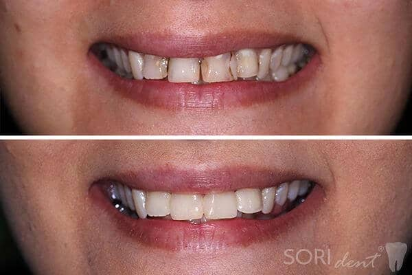 Dental fillings and root canal treatments • Before and after dental treatment