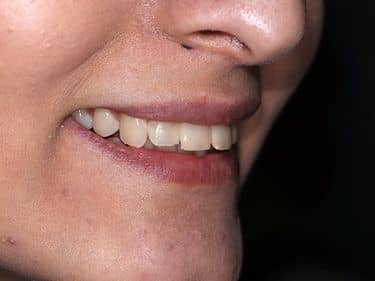Root canal treatments and dental fillings were redone