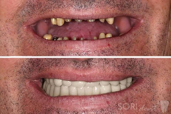 Full Fused-to-metal Porcelain Dental Bridges • Before and After Dental Treatment