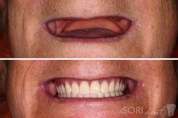 Full Dentures - Before and after dental treatment